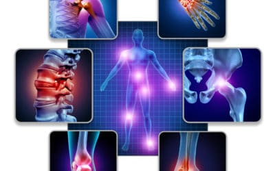 May is Arthritis Awareness Month: What is Osteoarthritis?