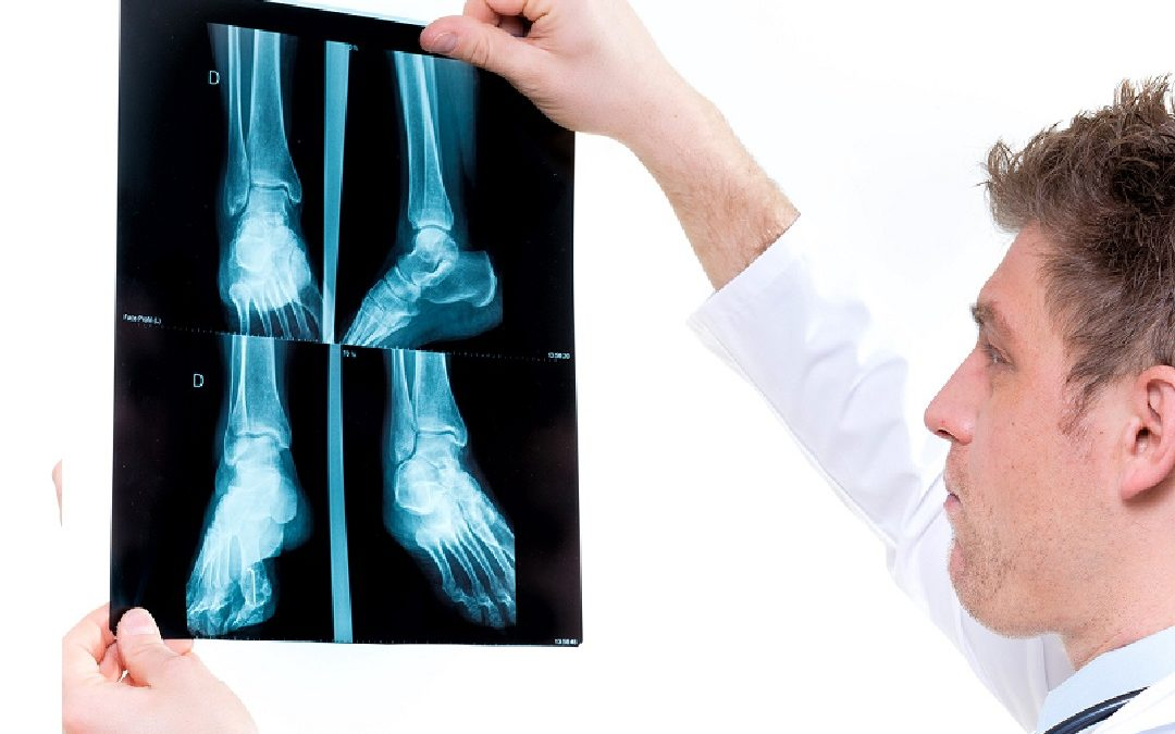 5 Reasons to Visit an Orthopedic Urgent Care Center