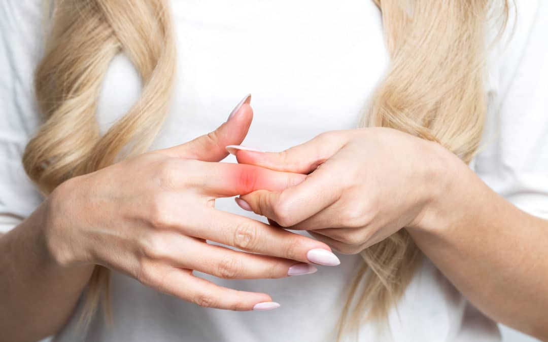 Jammed Finger? See a Hand Doctor to make sure it's not more serious.