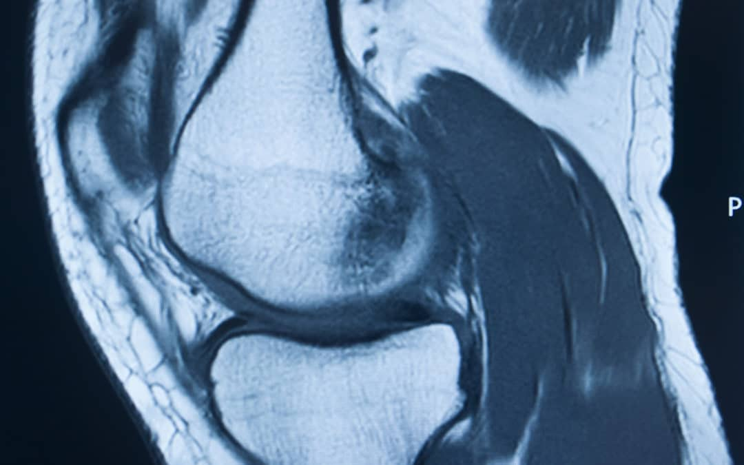 Why is MRI Useful in Determining an ACL Tear? How is a Tear Treated?