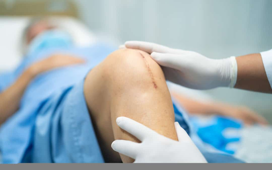 Questions About Knee Replacement – Michael B. Cannone, D.O.